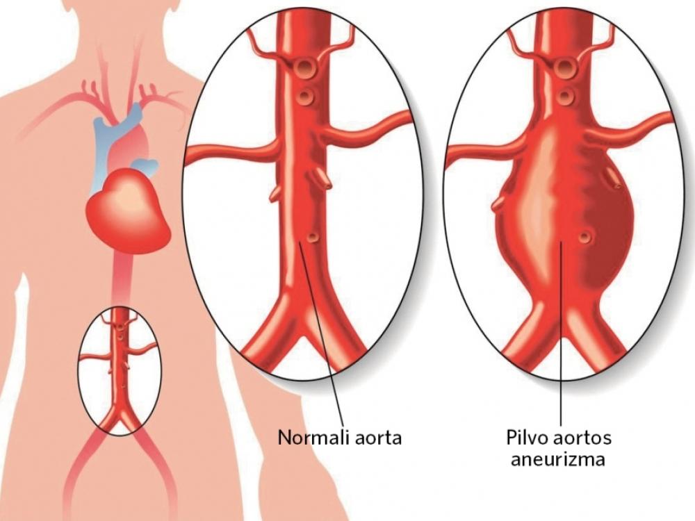 Neatsargus judesys ir aorta galėjo plyšti
