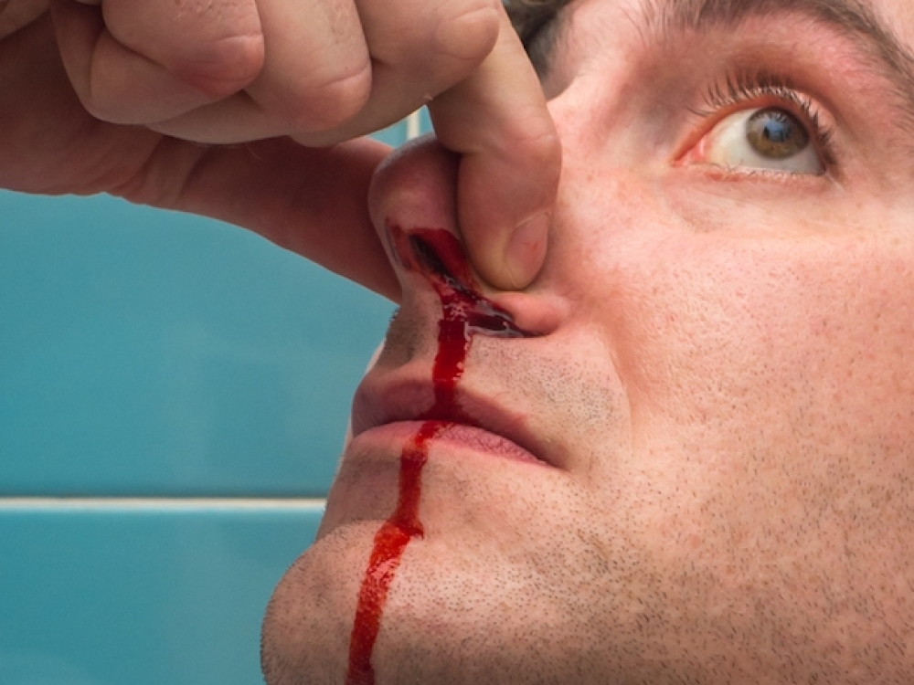 hipertenzija ir kraujavimas iš nosies)