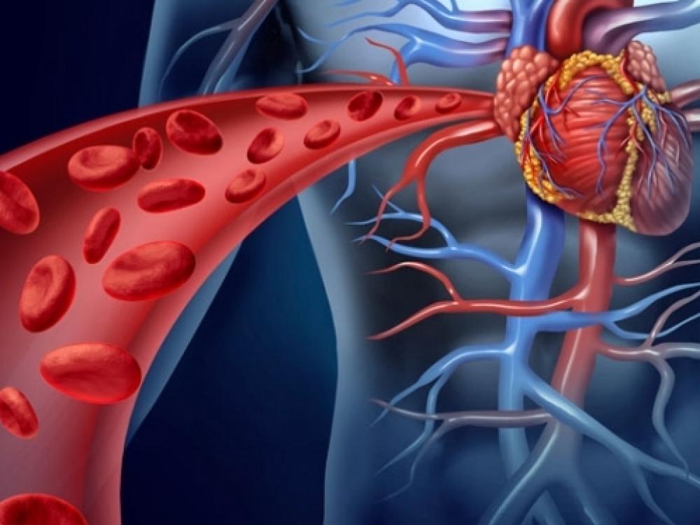 hipertenzija sukelia