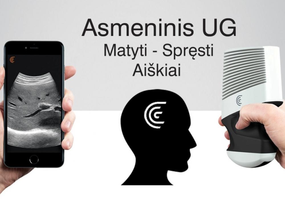 Asmeninė ultragarsinė sistema