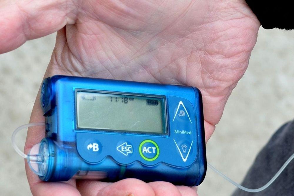 Įsibėgėja insulino pompų nuomos kompensavimas: laukia dar viena naujovė